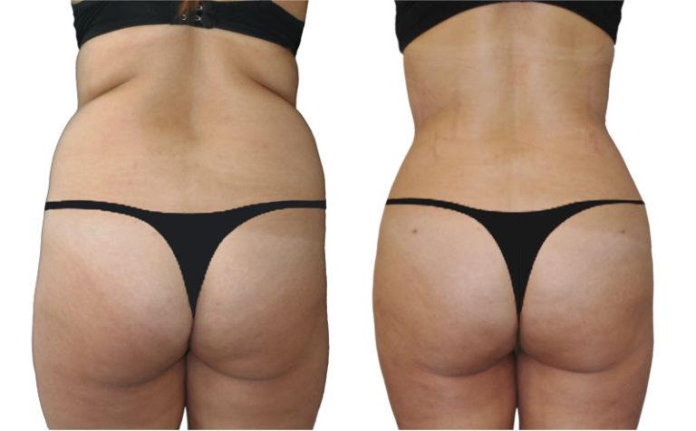 liposucción y el contorno corporal